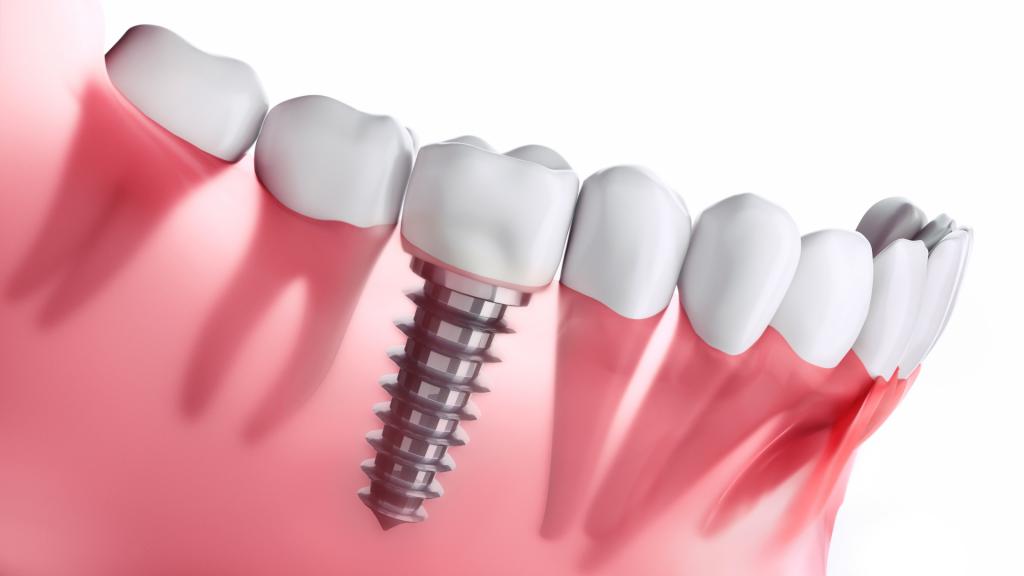 implanty zębów londyn